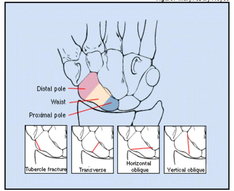 proximal scaphoid nonunion-osteosynthesis